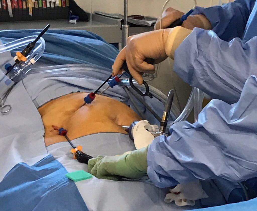 minilap laparoscopic cholecystectomy